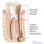 3. Site-Pentru Pacienți= Rubrica-Endodonția = SubDiviziunea - Tratamentul Propriu-Zis 3