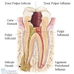 4. Site-Pentru Pacienți= Rubrica-Endodonția = SubDiviziunea - Cum funcționează - Imaginea 2