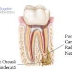1. Site-Pentru Pacienți= Rubrica-Retratamentul Endodontic = SubDiviziunea - De ce am nevoie de un retratament endodontic 1
