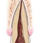 2. Site-Pentru Pacienți= Rubrica-Află Mai Multe (Traumatismele Dentare) = SubDiviziunea - Fractura Dentară