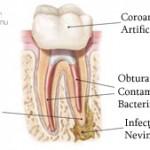 2. Site-Pentru Pacienți= Rubrica-Retratamentul Endodontic = SubDiviziunea - Ce presupune un retratament 1