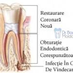 2. Site-Pentru Pacienți= Rubrica-Retratamentul Endodontic = SubDiviziunea - Ce presupune un retratament 3