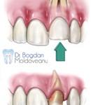 3. Site-Pentru Pacienți= Rubrica-Află Mai Multe (Traumatismele Dentare) = SubDiviziunea - Luxația Dentară