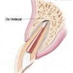 4. Site-Pentru Pacienți= Rubrica-Află Mai Multe (Endodonția Chirurgicală) = SubDiviziunea - La ce mă pot aștepta după o intervenție endodontică chirurgicală