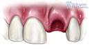 4. Site-Pentru Pacienți= Rubrica-Află Mai Multe (Traumatismele Dentare) = SubDiviziunea - Avulsia Dentară 1