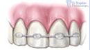 4. Site-Pentru Pacienți= Rubrica-Află Mai Multe (Traumatismele Dentare) = SubDiviziunea - Avulsia Dentară 2